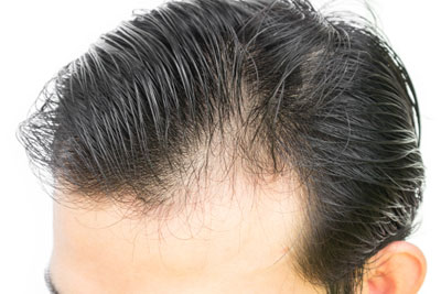 How Light Can Cure Baldness